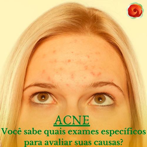 Acne - Você sabe quais os exames específicos para avaliar suas causas?