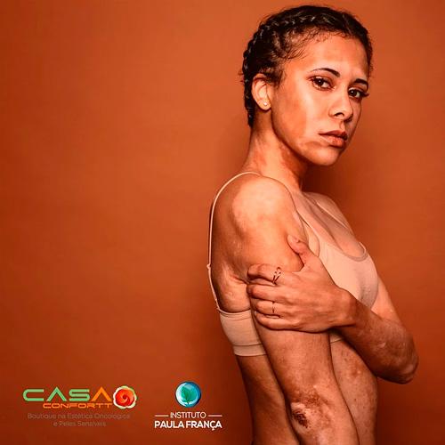 Dia Internacional da Conscientização do Vitiligo